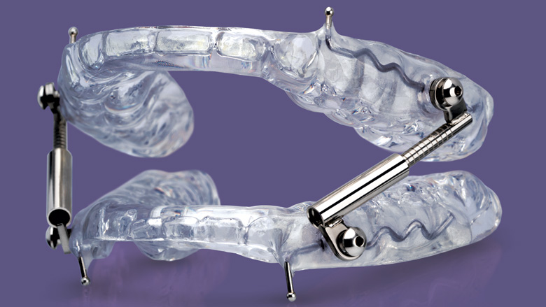 Glidewell Dental introduces a new oral sleep appliance