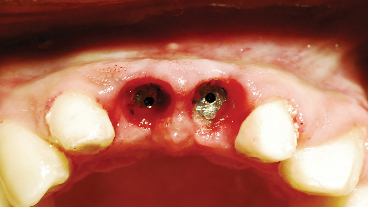 Predictable implant uncovery with diode laser
