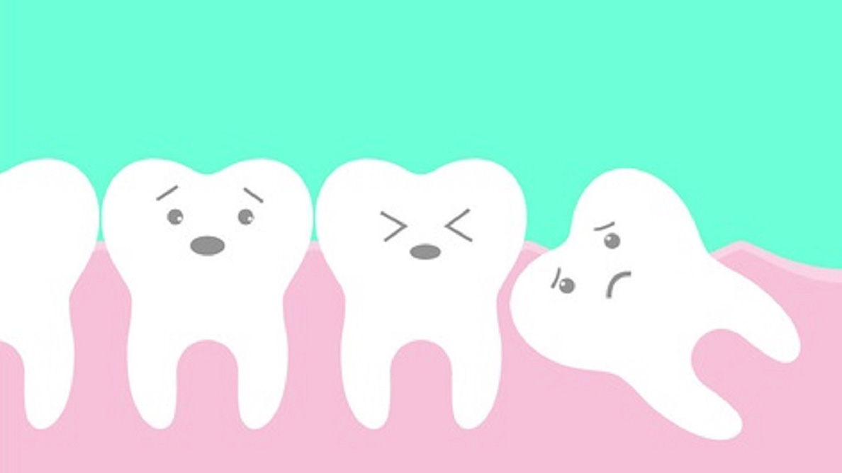 Early removal of unerupted wisdom teeth results in positive gum outcomes